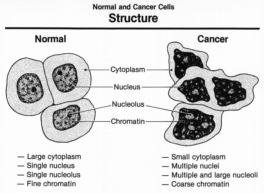 cancer cell structure graphic